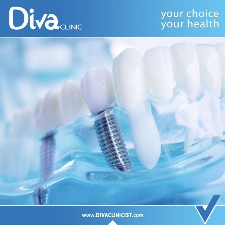 تعليمات بعد زراعة الأسنان