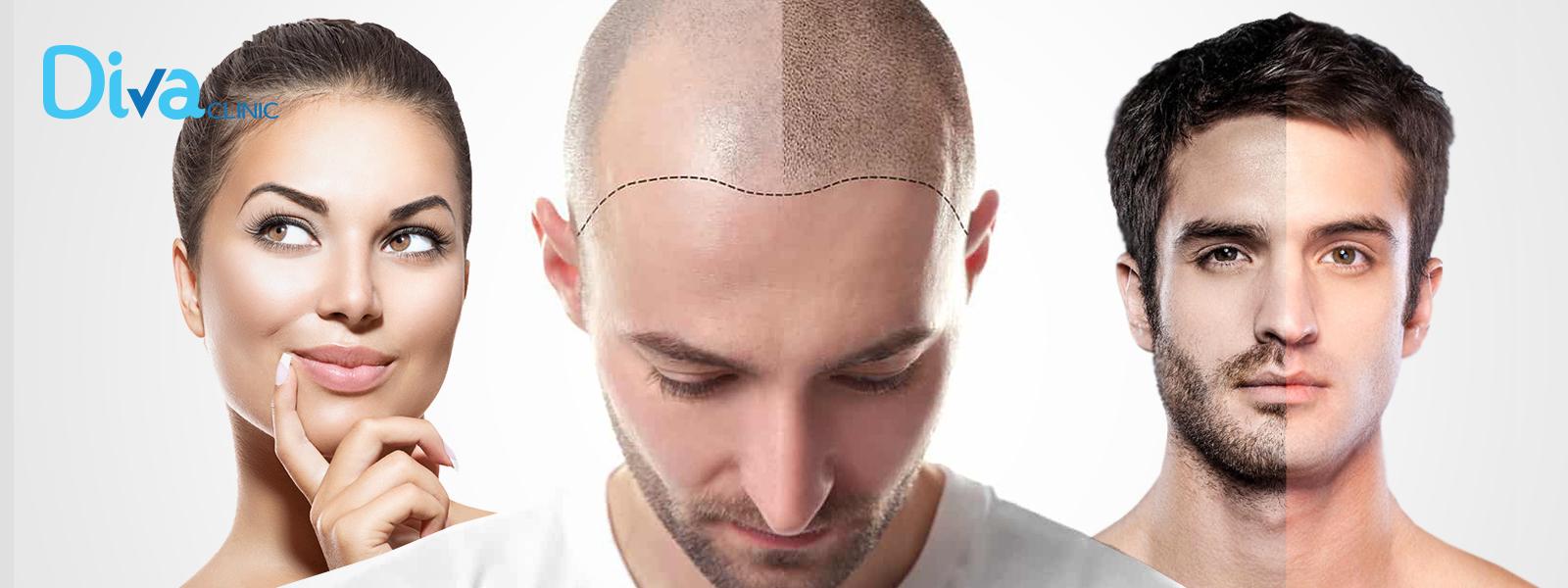 زراعة الشعر واللحية والحاجب