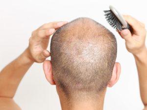 تسريح الشعر بعد الزراعة