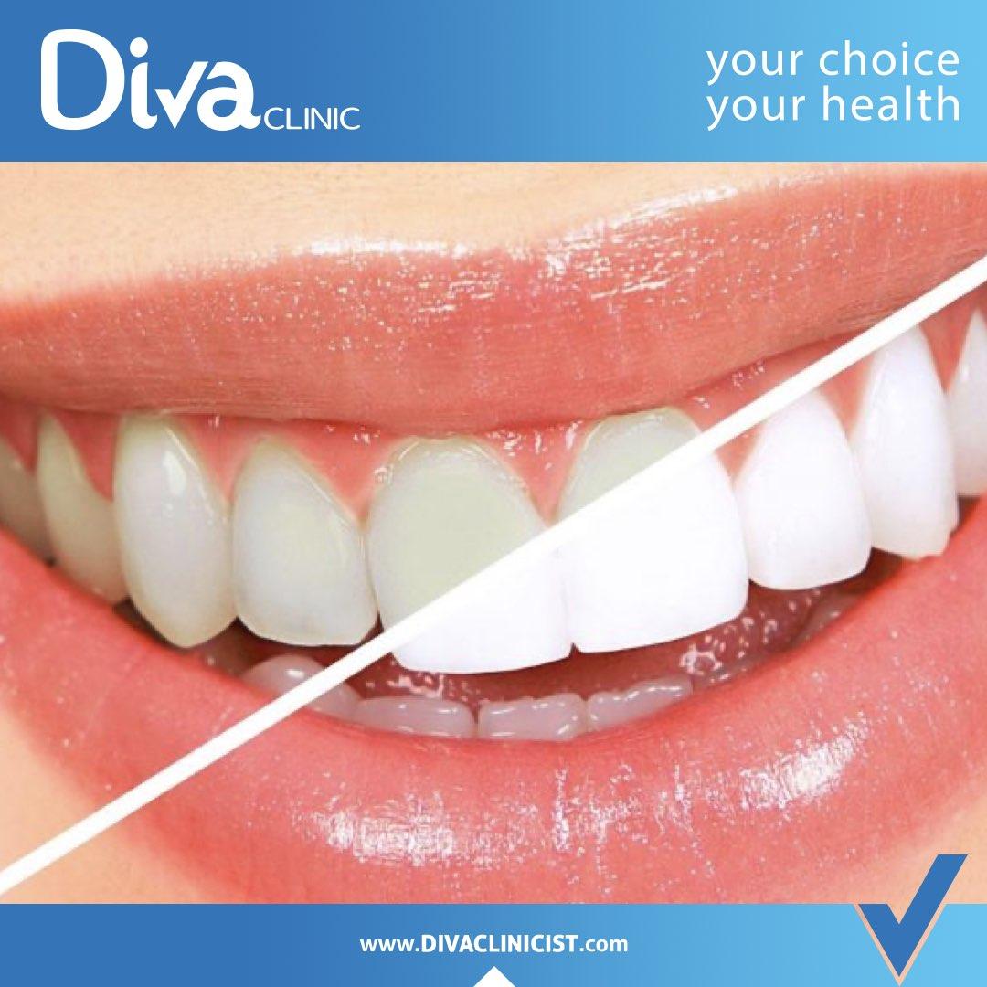 طب الاسنان التجميلي