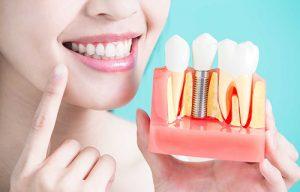 زراعة الاسنان في اسطتبول