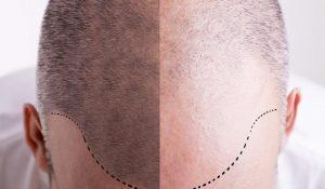 زراعة الشعر بتقنية الاقتطاف